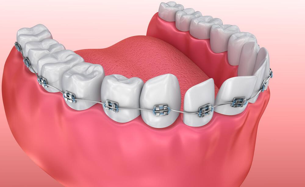 Krzywe zęby – problem nie tylko estetyczny