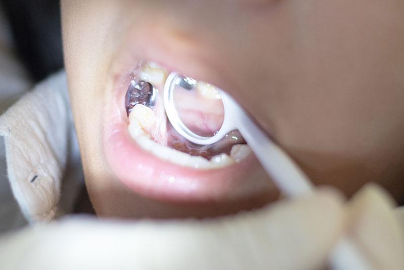 rodzaje-wypelnien-stomatologicznych